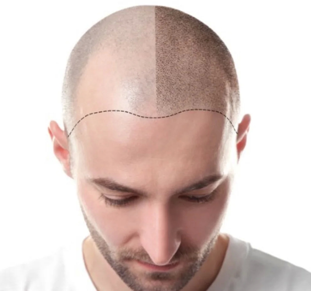 Scalp Micropigmentation Training For A Stimulated Hairline post thumbnail image