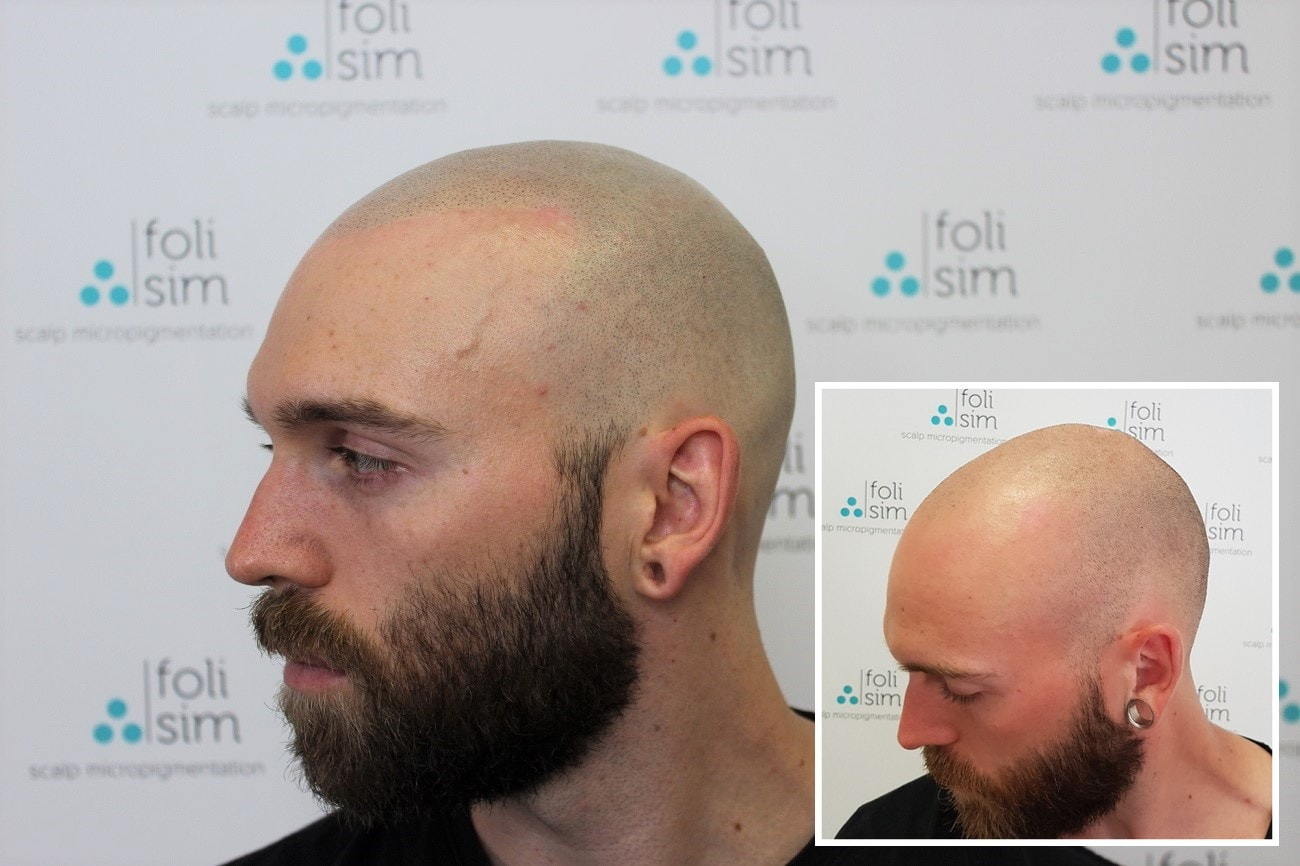 Grow Your Hair with Scalp Micropigmentation post thumbnail image
