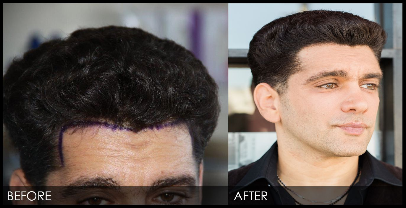 Side-Effects Of Mens Hair Transplant California! post thumbnail image