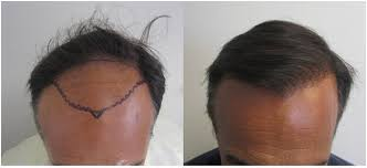 Men's Hair Transplant Services At Its Best At Game Day Men's Hair post thumbnail image