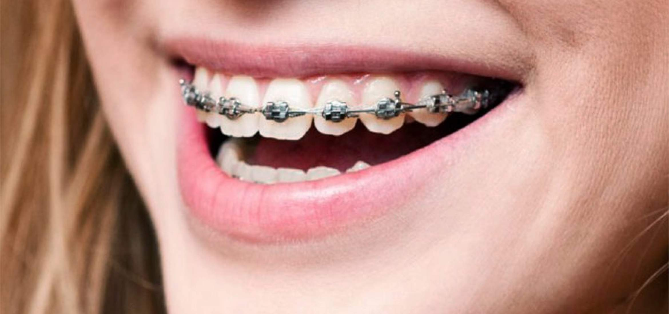 Three major differences you will feel before and after teeth whitening post thumbnail image